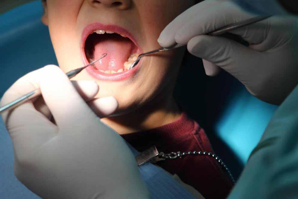 Телескопический протез потребует корневого канала для каждого зуба, который оснащен коронкой.
