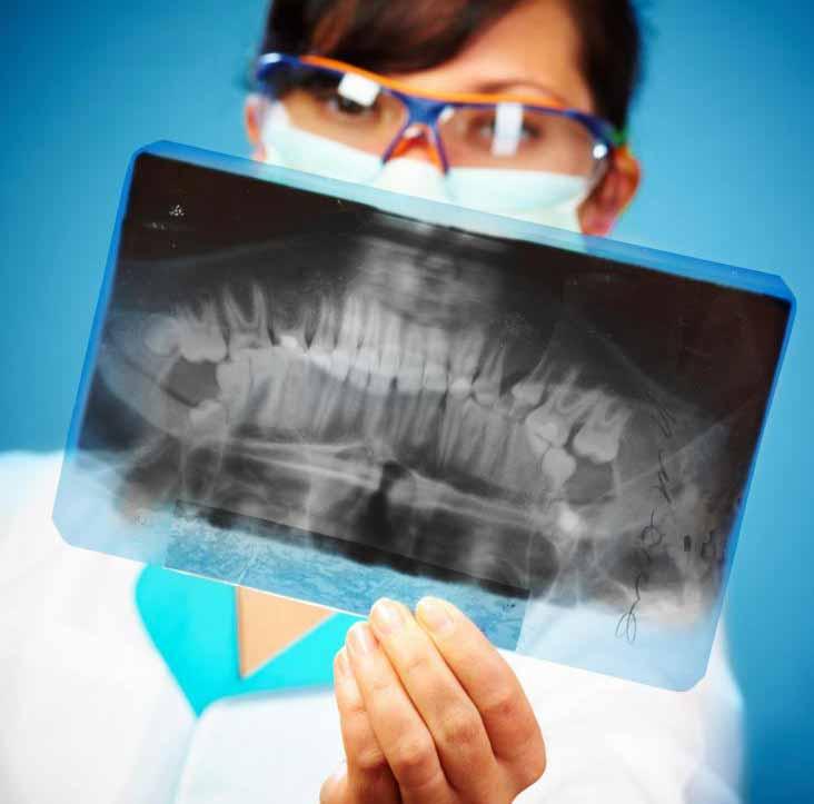 Сверхзубрины часто являются хорошим вариантом для пациентов с корнями зубов.