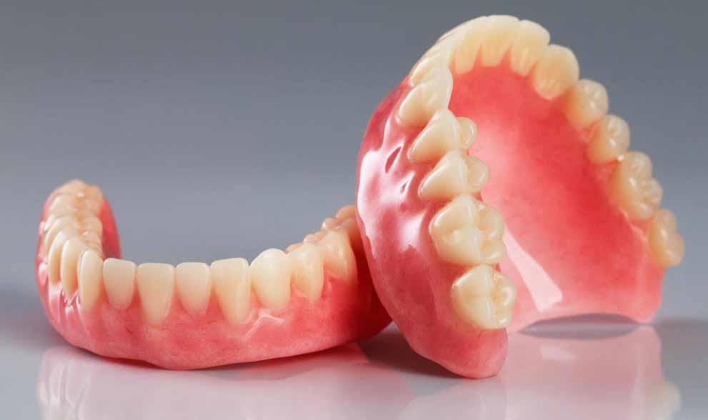 Сверх-зубные протезы будут разработаны, чтобы соответствовать зубам или зубным имплантатам.