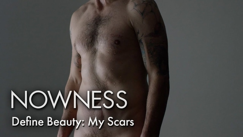 Define Beauty: Scars Are More Than Skin Deep