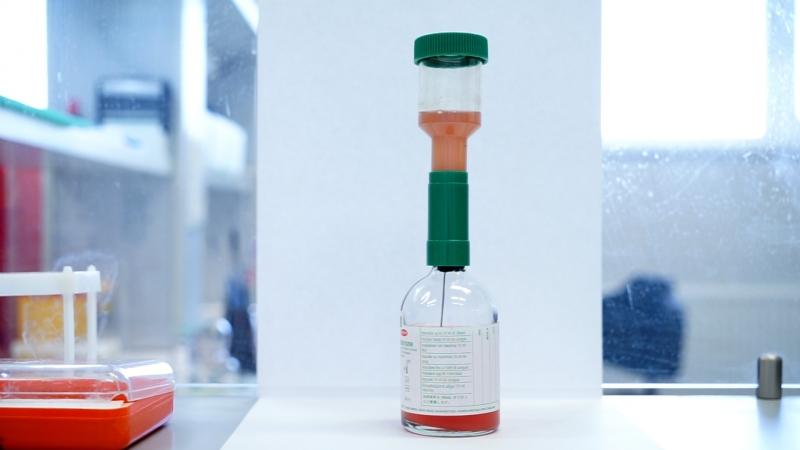 Диагностика сепсиса исследование крови на стерильность