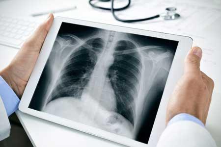 Плетизмограф - это инструмент для измерения изменений объема в органе или целом организме.