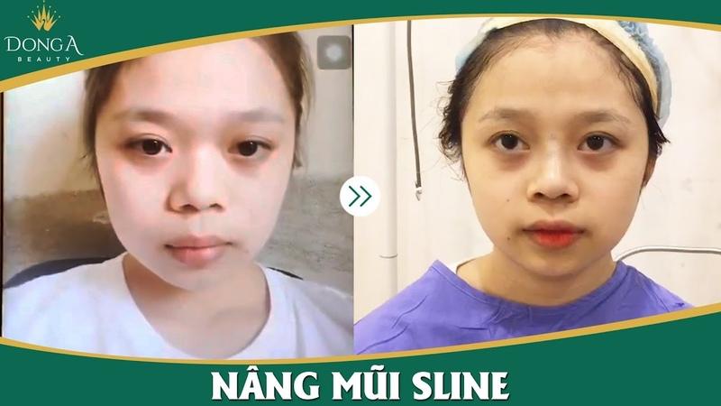 Nâng mũi Sline giúp bạn có chiếc mũi đẹp ngay khi vừa làm xong - YouTube