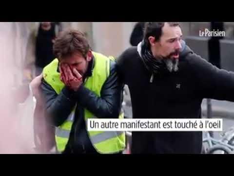 08/12/2018 PARIS flash ball paris 3 bléssé dont 2 du journal Parisien