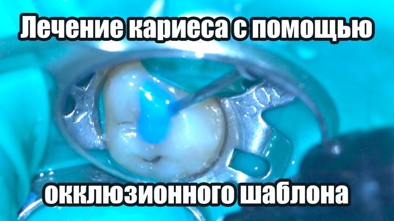 Лечение кариеса с помощью окклюзионного шаблона в Севастополе
