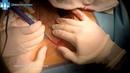 Keystone flap para reconstruccion post reseccion de melanoma