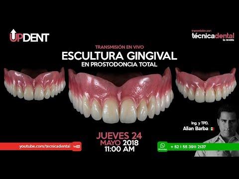 Escultura Gingival en Prostodoncia Total