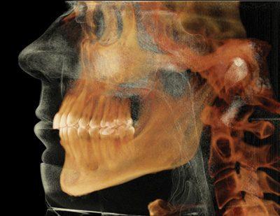 Восстановленное трехмерное изображение автора (сделанное с помощью программ iCAT и Anatomage InVivo