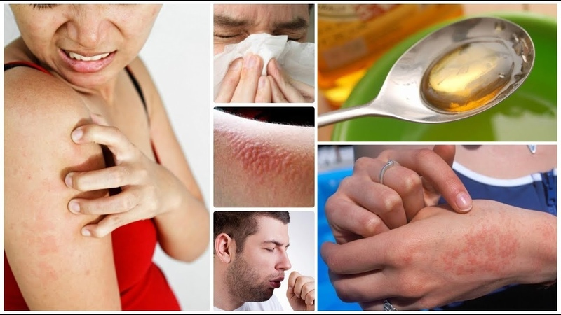 ✅Вот как устранить сыпь и зуд кожи при аллергии, инфекции и заболеваниях печени!
