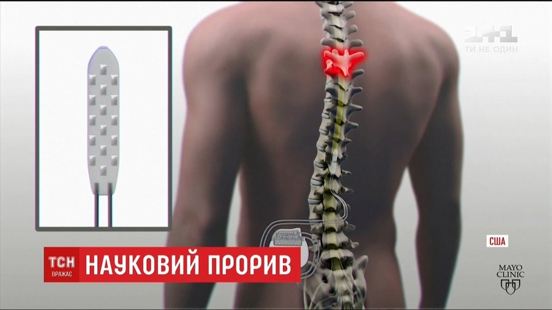 У США успішно випробували імплант, що дозволяє паралізованим людям ходити