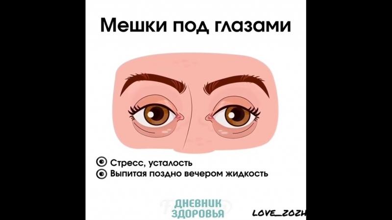 Что говорят глаза о вашем здоровье: Дневник Здоровья