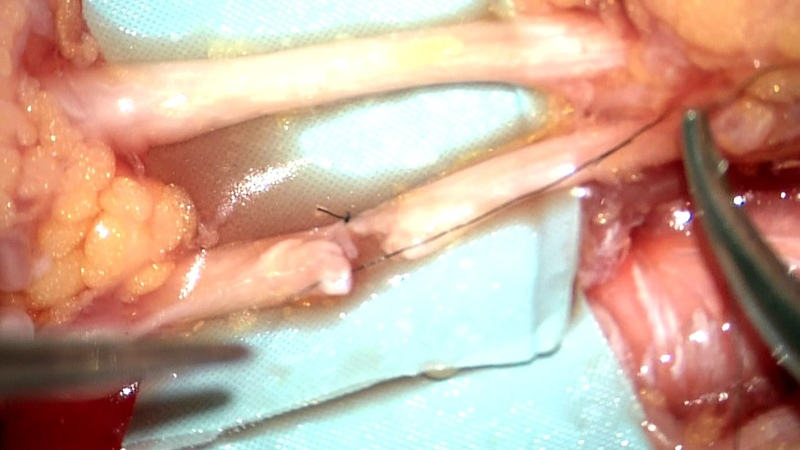 Acute nerve repair