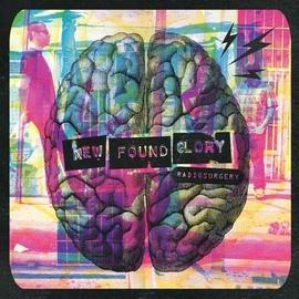New Found Glory альбом Radiosurgery (Deluxe Edition)