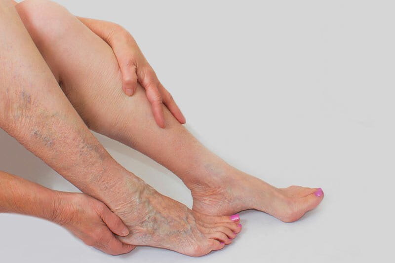 Новая эра лечения варикозного расширения вен