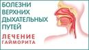 Синусит, гайморит, отит, ринит, трахеит, ларингит, ангина и как лечить! Кратко и ёмко!