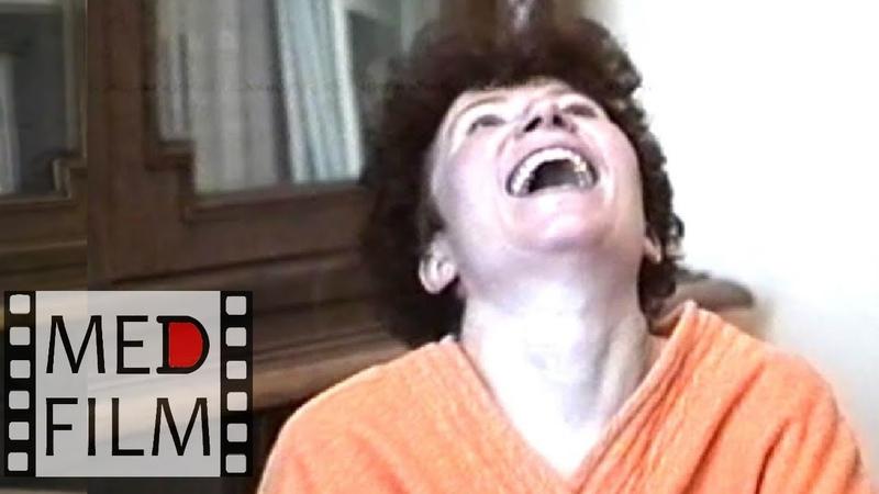 R Шизофрения острый бред © R Acute delirium Psychiatry