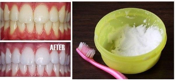 Отбеливаем зубы дома Выдавите немного зубной пасты в небольшую емкость, добавьте: - 1 ч.л. пищевой соды, - 1 ч.л. перекиси водорода - 0,5 ч.л. воды. Тщательно смешайте ингредиенты и нанесите на