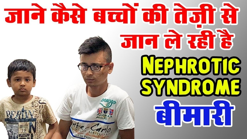 Nephrotic Syndrome in Children in Hindi | Nephrotic Syndrome Treatment -Karma Ayurveda
