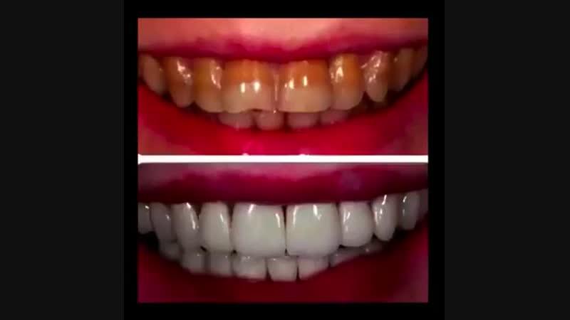 HiSmile - домашнее отбеливание зубов.Ссылка под видео.