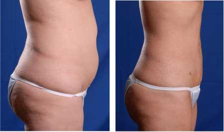 Люди, которые продвигают инъекции липо, утверждают, что выстрелы могут улучшить потерю веса, ускоряя метаболизм и устранение жира.