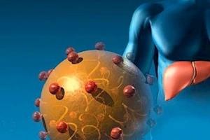 Пациенты могут выиграть от использования иммуносупрессивных препаратов, таких как преднизон, препарат, используемый для подавления функции иммунной системы.