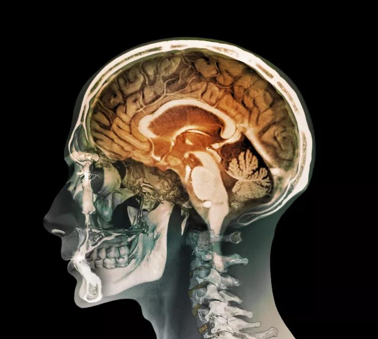 Упражнения для алкогольного мозга могут помочь выздоровлению