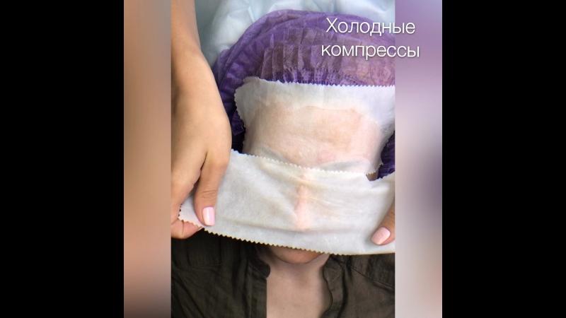 Пилинг. Косметолог Минск Ульяна Гайс
