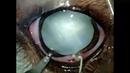 Хирургия катаракты у собаки породы джек рассел терьер Jack Russel Cataract Surgery
