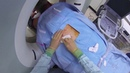 Kidney Thermal Ablation