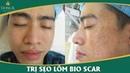 Cận cảnh quá trình điều trị sẹo lõm CỰC KHÓ tại Thẩm mỹ viện Đông Á - YouTube