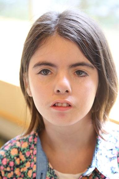 Синдром Мебиуса возникает из-за недоразвития лицевых нервов, которые контролируют часть глаза.