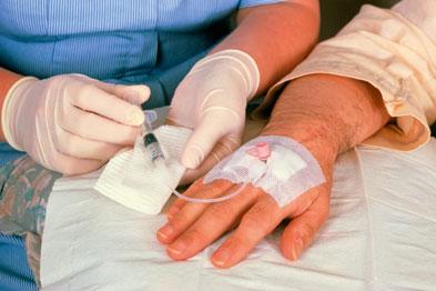 Побочные эффекты схемы АБВД: Легкие кровоподтеки или кровотечение (из-за слишком малого количества тромбоцитов).