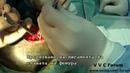 Резекция головки бедренной кости Femoral Head Osteotomy