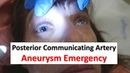 Posterior Communicating Artery Aneurysm Emergency