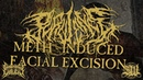 PURULENCE Meth Induced Facial Excision official lyric video 2018