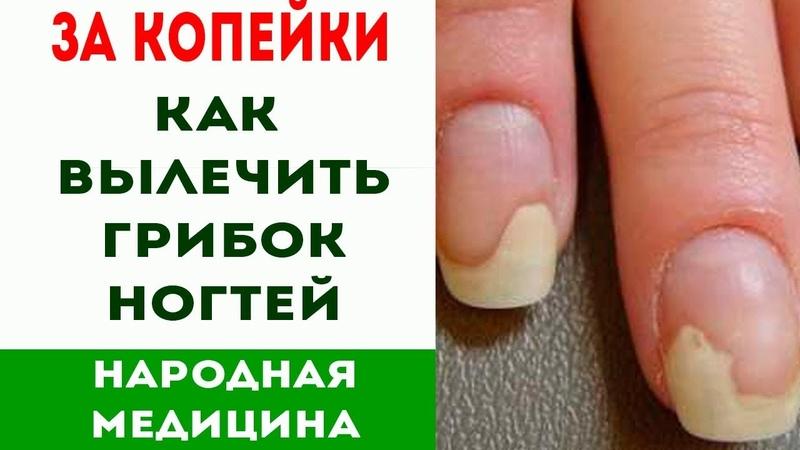Простые и копеечные способы лечения грибка ногтей народными средствами   Про здоровье