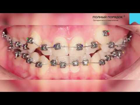 Видео 129 Прогресс в лечении с удалением за 5 месяцев на металлических брекетах Damon Q