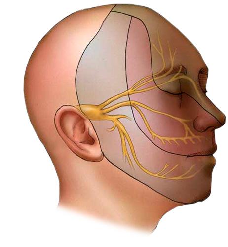 Лечение невропатии