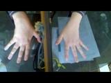 11 мес. после инсульта - пальцы кисти 2 11 months. after a stroke - the fingers of