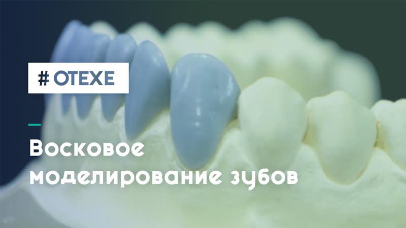 Восковое моделирование зубов (wax-up)