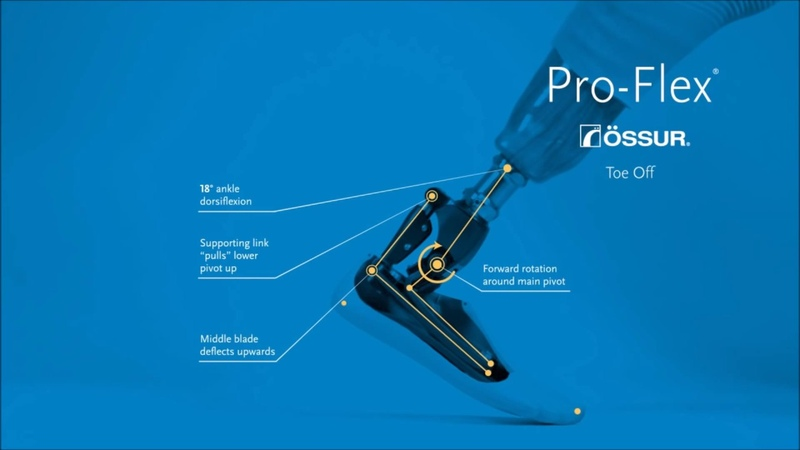 Protesis pie Pro-Flex Ossür en Ortopedia Juan Bravo
