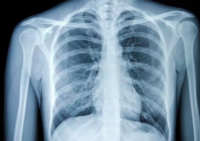 Рентген грудной клетки для диагностики рака легких