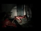 Лизуны в новом геймплейном трейлере игры Resident Evil 2!