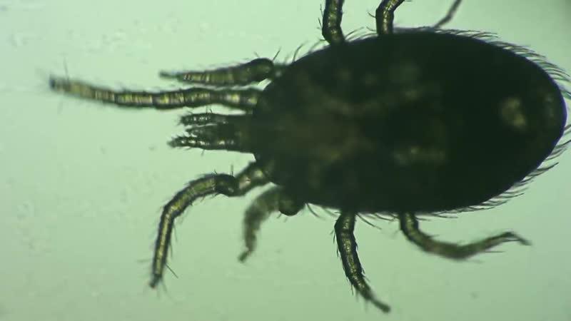 Dermatology. Dermatophagoides pteronyssinus (House Dust Mite)