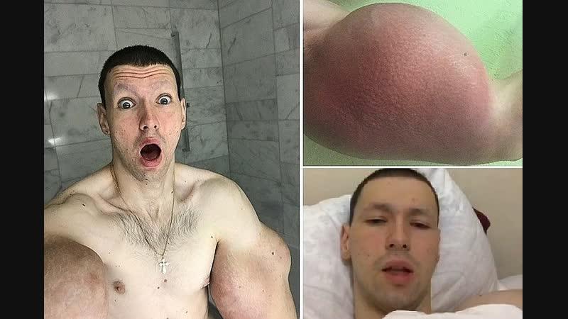 Терёшин сознался что скоро удалит руки базуки