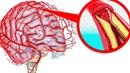 Как очистить сосуды головного мозга Мощный рецепт народной медицины