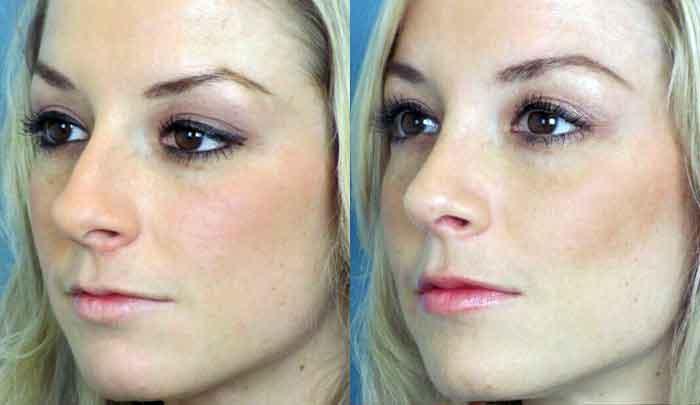 Изменение носа после ринопластики. Фото до и после ринопластики.