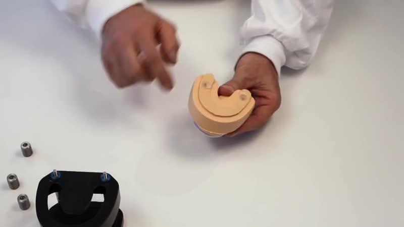 Разобщающая капа (Окклюзионная шина). Этапы изготовления