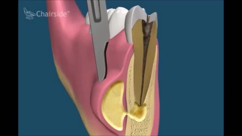 Способы лечения периодонтита хирургический и терапевтический