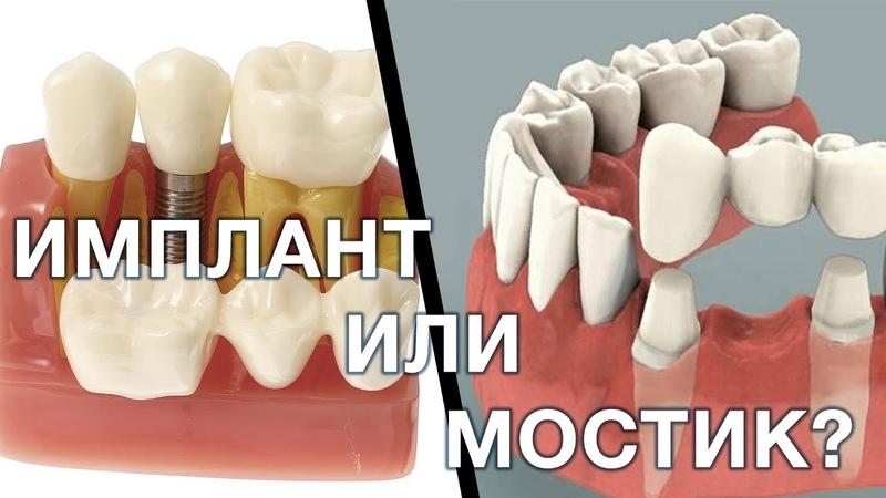 Имплант или зубной мостик Что лучше выбрать Имплантация зубов Мост зубной